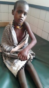 A young Orma girl who was treated successfully with good Antivenom from a Red Spitting Cobra bite.